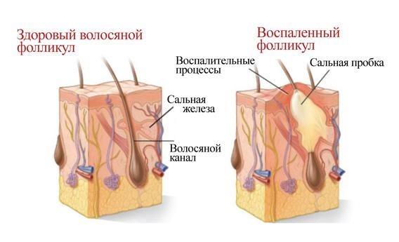 Болезни поросят и их симптомы, признаки, лечение, красные пятна на теле: что это